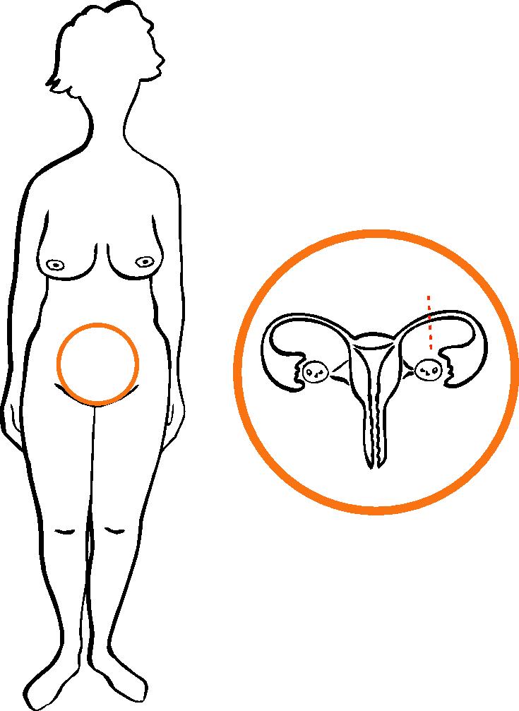 sterilisation wechseljahre